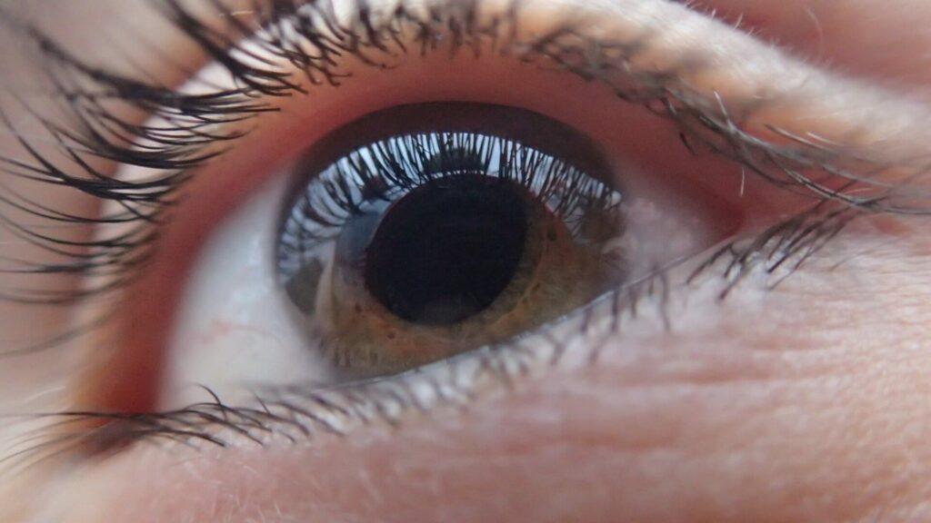 Chronic Dry Eye treatment