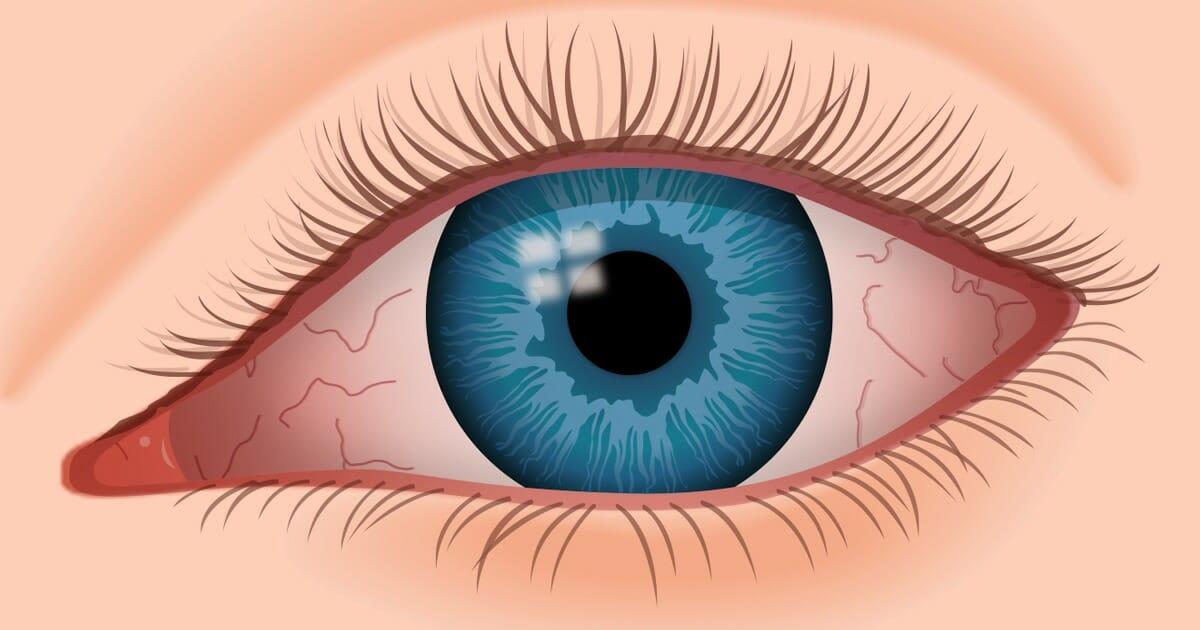 Chronic Dry Eye: 7 Easy Tips For Dealing With Chronic Dry Eye