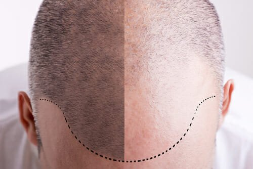 Hair Transplant in Turkey Reviews