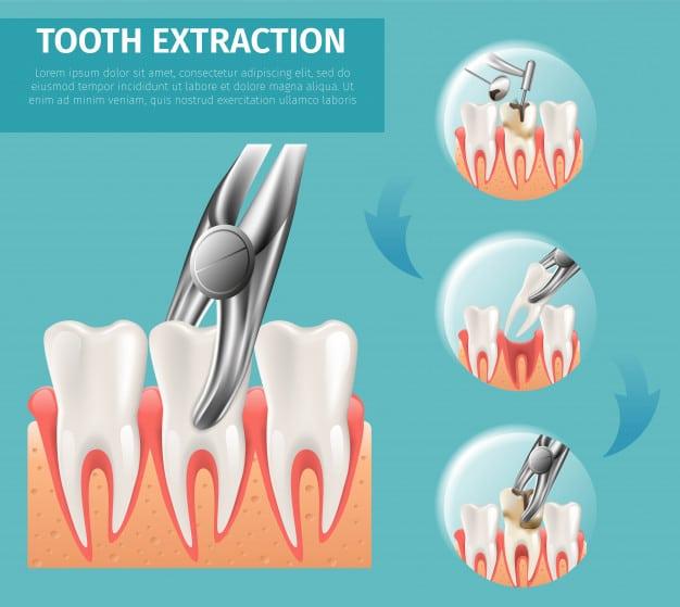Dental Implant Surgery
