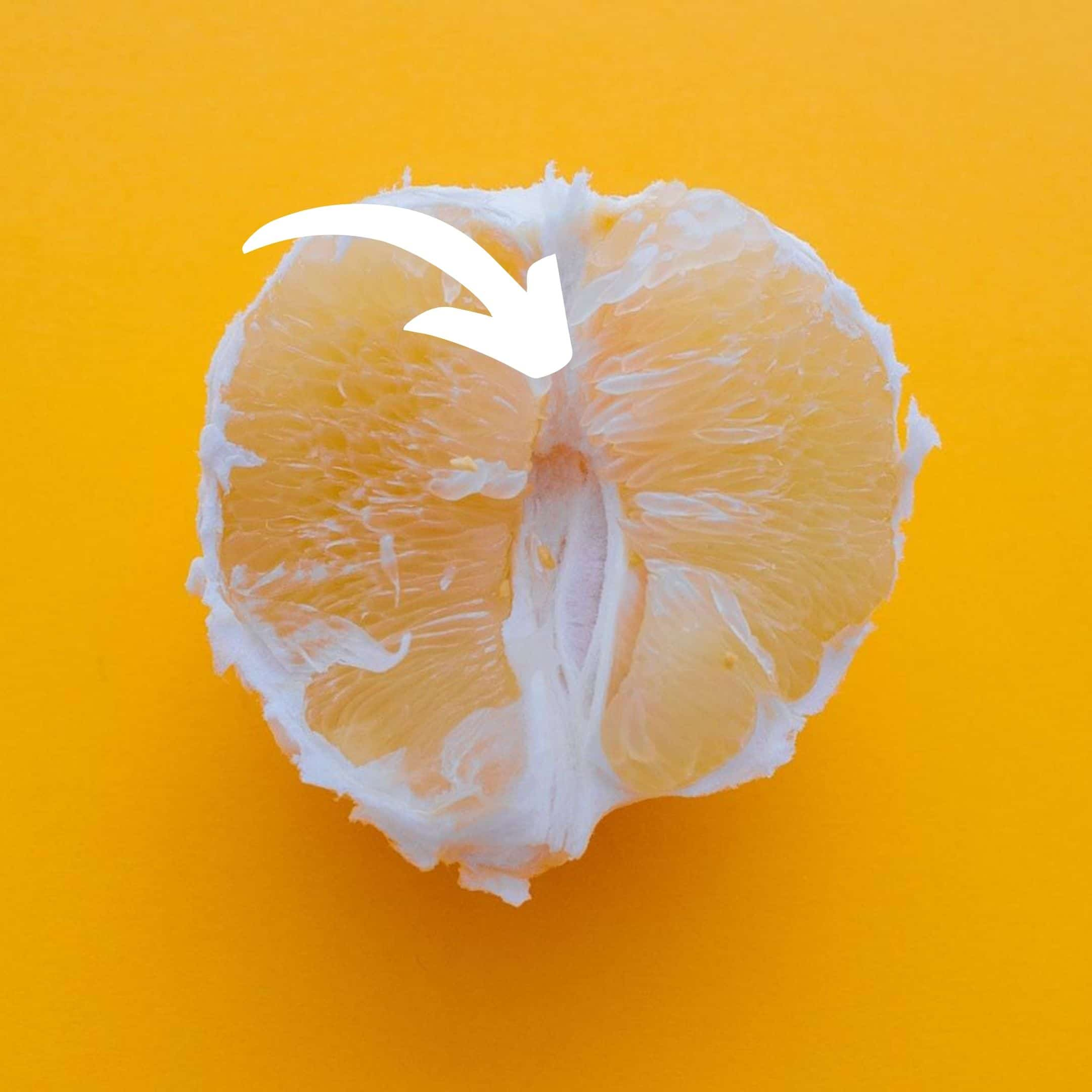 orange with an arrow indicating roughly where the vch would be placed