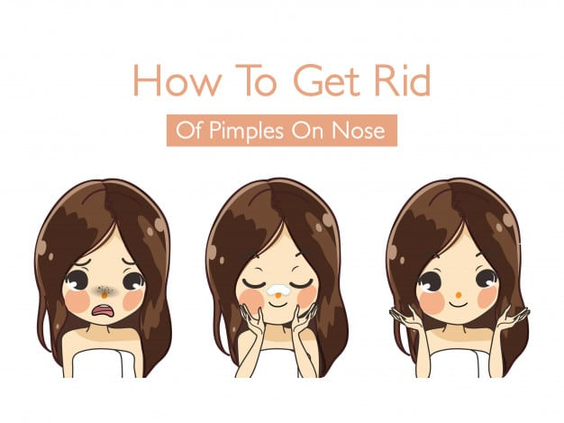 Get Rid of Pimples Fast